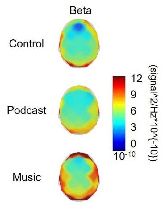 便携式脑电图机显示运动过程中音乐如何影响大脑